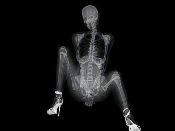 レントゲン写真のエロ画像